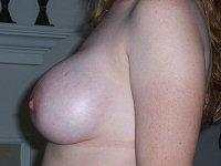 Breast Augmentation Left Side After 1 Day