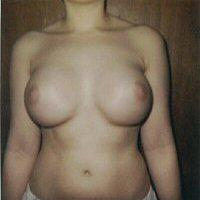 Breast Augmentation After 3 Months