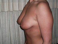 Breast Augmentation Left Side Before