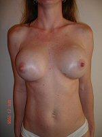 Breast Augmentation Front After 14 Weeks
