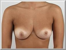 Before Breast Augmentation & Correction of Asymmet