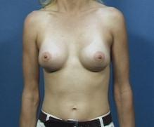 Front View After Breast Enlargement Surgery