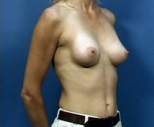 Oblique View After Breast Implant Surgery