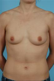 Front View Before Saline Breast Implants