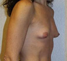 Side View Before Breast Augmentation