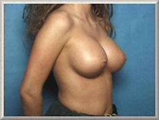 Oblique View After Saline Breast Implants