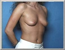 Oblique View Before Saline Breast Implants