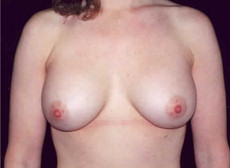 Front View After Saline Breast Implants