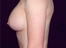 Side View After Saline Breast Implants