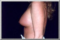 Left Side View After Breast Augmentation
