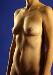 Oblique Side View Before Breast Augmentation