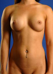 Front ViewAfter Breast Enhancement