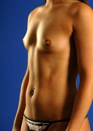 Oblique Side View Before Breast Enhancement