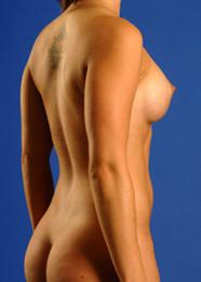 Side View After Breast Augmentation