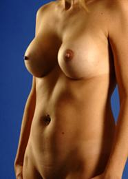 Oblique Side View After Breast Enhancement
