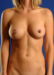 Front ViewAfter Breast Augmentation