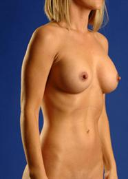 Oblique Side View After Breast Augmentation
