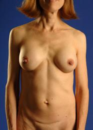 Front View After Breast Enhancement