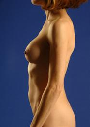 Side View After Breast Enhancement