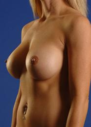 Oblique Side View After Breast Enlargement