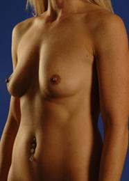 Oblique Side View Before Breast Enlargement