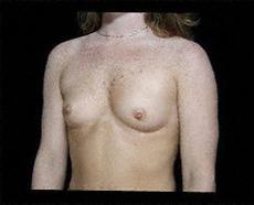 Oblique before Breast Augmentatio