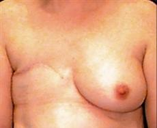 Front View Before Breast Reconstruction