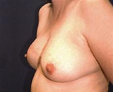 Obluqie View After Breast Reconstruction