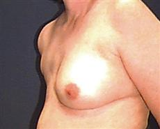 Obluqie View Before Breast Reconstruction