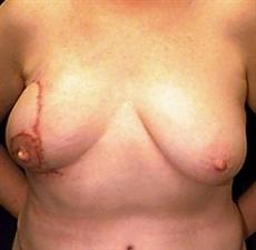 Front View After Breast Reconstruction