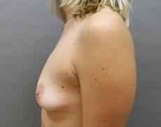 Atlanta Georgia Brust Implantat Chirurg
