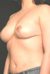 Oblique View After Breast Reduction