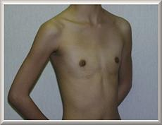 Before Saline Breast Implants Oblique View