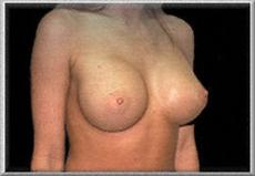 Oblique View After Breast Augmentation