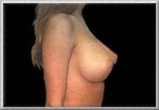After Breast Enhancement Side View