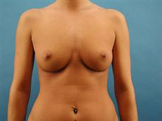 grand haven breast augmentation