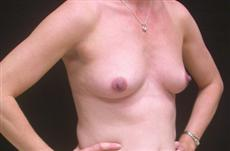 Before Breast Implants Oblique View