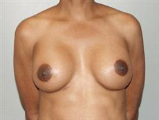 Front View After Breast Augmentation