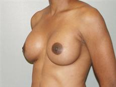 After Breast Implants Oblique View