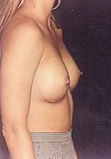 Side View After Breast Implants