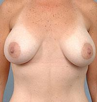 Front View 4 Months After Breast Augmentation