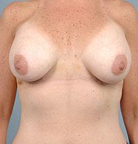 Front View A Few Days After Breast Augmentation