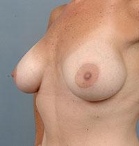 Oblique View 4 Months After Breast Augmentation