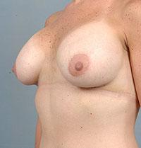 Oblique View A Few Days After Breast Augmentation
