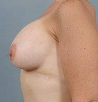 Side View A Few Days After Breast Augmentation