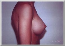 Side View After Breast Enlargement