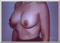 Oblique View After Breast Enlargement