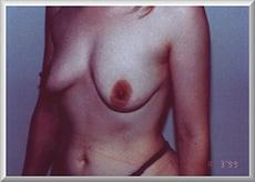 Oblique View Before Breast Enlargement