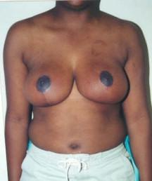 Front View After Mastopexy