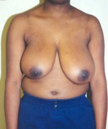 Front View Before Mastopexy